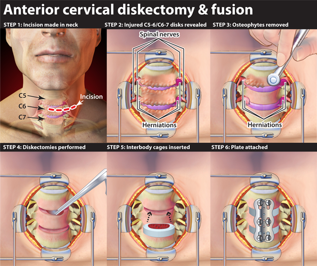Anterior Cervical Diskectomy