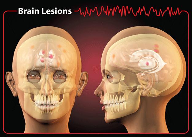 Brain Lesions
