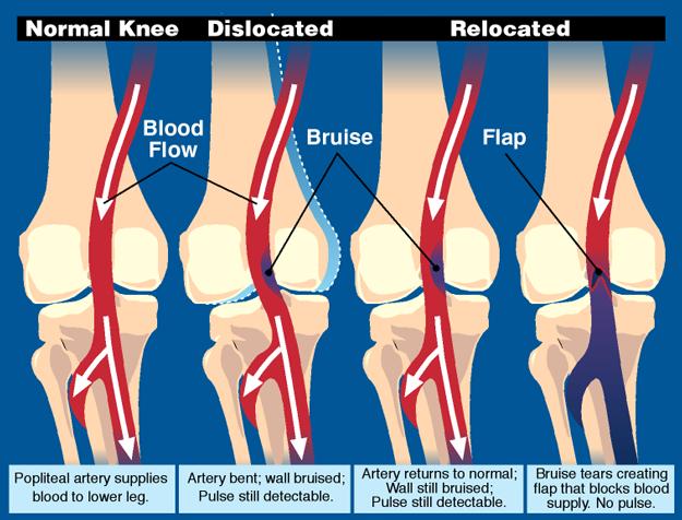 Knee Circulation
