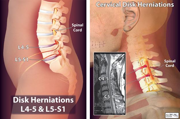 Disk Herniations